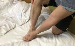痛風の足の痛み